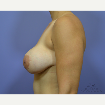 25-34 year old woman treated with Breast Lift with Implants before 3419885