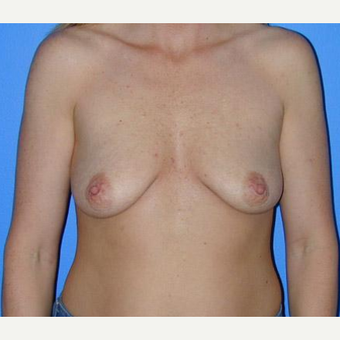 Breast Augmentation before 3206586