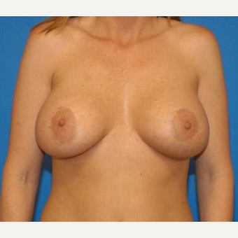 Breast Augmentation after 3206586