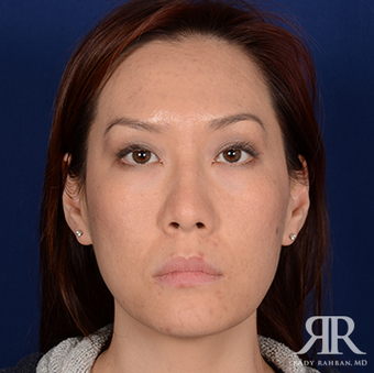 Rhinoplasty before 1357429