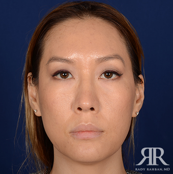 Rhinoplasty after 1357429
