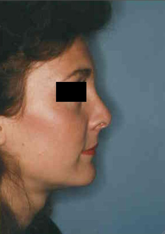 Revision Rhinoplasty after 665097