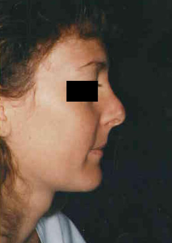 Revision Rhinoplasty before 665097