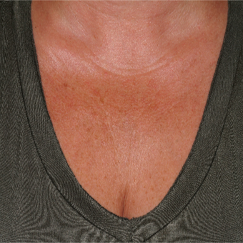 35-44 year old woman treated with Sculptra to help with the fine lines of the chest before 3172896