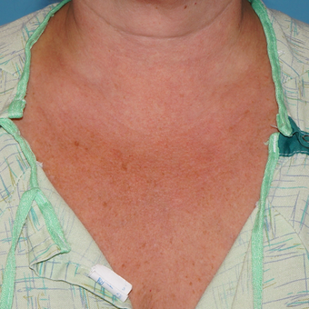 35-44 year old woman treated with Sculptra to help with the fine lines of the chest after 3172896