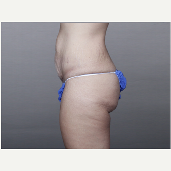 25-34 year old woman treated with Tummy Tuck and Liposuction before 3131522