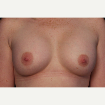 25-34 year old woman who underwent bilateral nipple reduction / shortening after 3488410