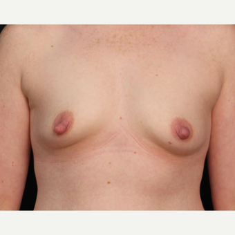 25-34 year old woman who underwent bilateral nipple reduction / shortening before 3488410