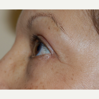 65-74 year old woman treated with Eye Bags Treatment after 3036576