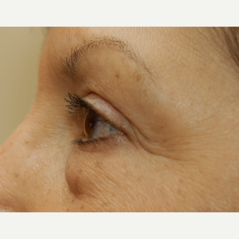 65-74 year old woman treated with Eye Bags Treatment before 3036576