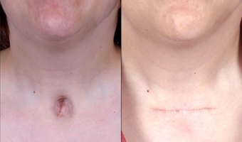 Woman in her 30's treated for a depressed, unsightly scar related to previous tracheotomy before 672300