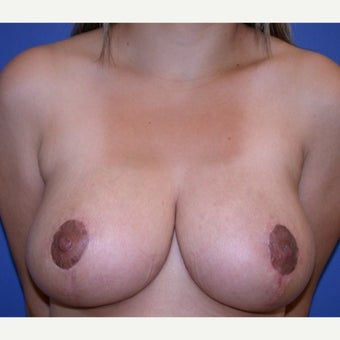 25-34 year old woman treated with Breast Reduction after 1585248