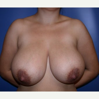 25-34 year old woman treated with Breast Reduction before 1585248