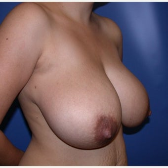 25-34 year old woman treated with Breast Reduction 1585248