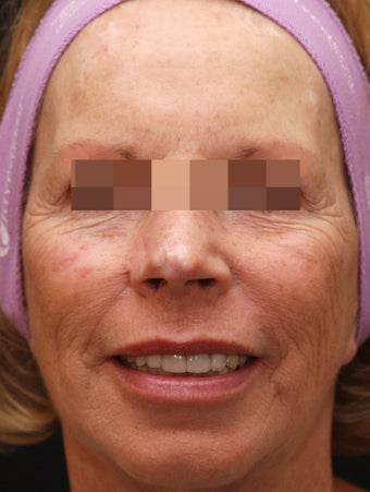 Fraxel Repair for Sun Damage and Wrinkles before 113204