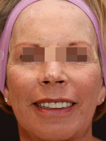 Fraxel Repair for Sun Damage and Wrinkles after 113204