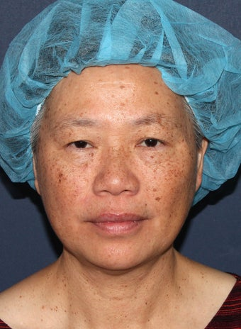 57 year old Asian female with age spots and brown spots before 1058216