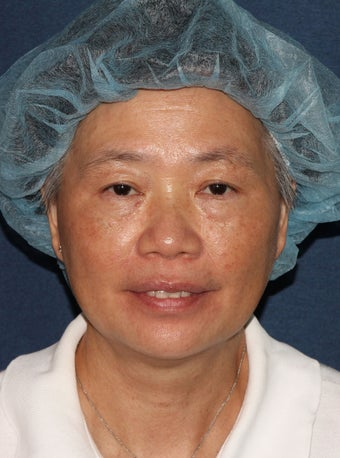 57 year old Asian female with age spots and brown spots after 1058216