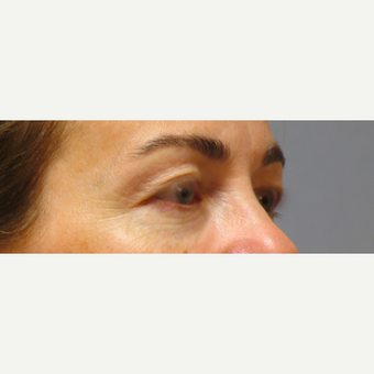 Eyelid Surgery before 3123636
