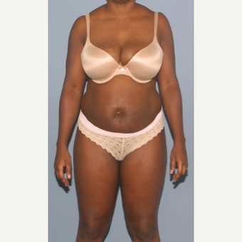 25-34 year old woman treated with Tummy Tuck before 3512755