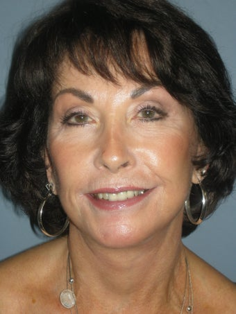 LiteLift, Blepharoplasty, Platysmaplasty on 67-year-old Woman
