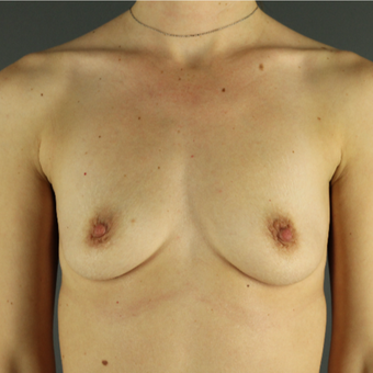 35-44 year old woman treated with Breast Augmentation before 3043209