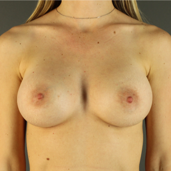 35-44 year old woman treated with Breast Augmentation after 3043209