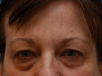 Woman interested in improvement of her tired appearance.  (Eyelid Lift) before 1558255