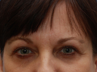 Woman interested in improvement of her tired appearance.  (Eyelid Lift) after 1558255
