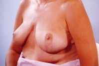 Breast Reduction after 3446222