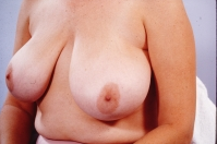 Breast Reduction before 3446222