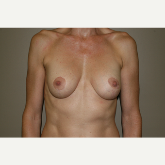 25-34 year old woman treated with Breast Lift with Implants after 3769584