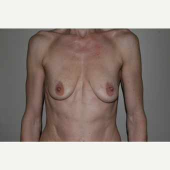 25-34 year old woman treated with Breast Lift with Implants before 3769584