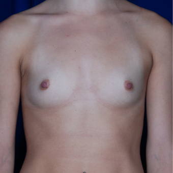 25-34 year old woman treated with Mentor Breast Implants before 2725525