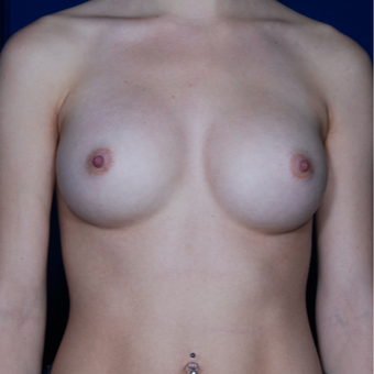 25-34 year old woman treated with Mentor Breast Implants after 2725525