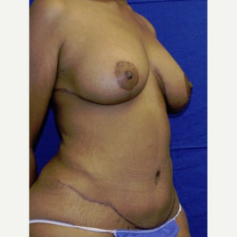 25-34 year old woman treated with Tummy Tuck after 2040536