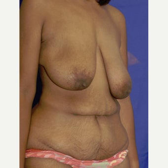 25-34 year old woman treated with Tummy Tuck before 2040536