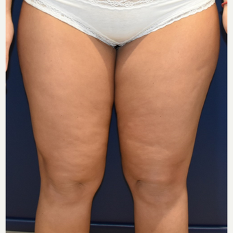 25-34 year old woman treated with Liposuction before 3420218
