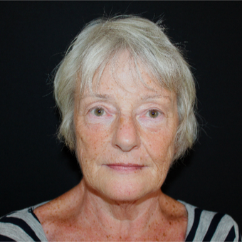 65-74 year old woman treated with Lower Face Lift before 3602878