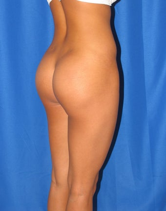Buttock Implants Before and After after 906340
