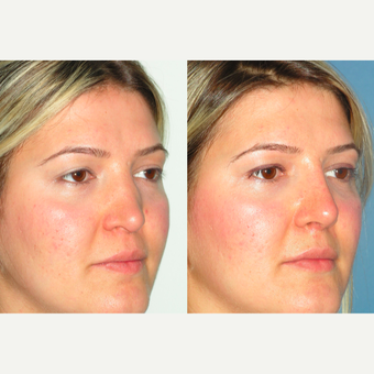 25-34 year old woman treated with Revision Rhinoplasty after 3521340