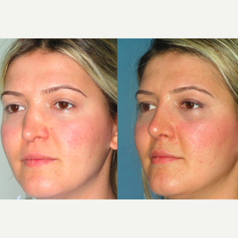 25-34 year old woman treated with Revision Rhinoplasty before 3521340