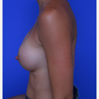 28- year old woman treated with Breast Augmentation after 3320510