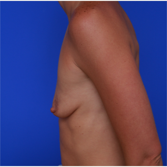 28- year old woman treated with Breast Augmentation before 3320510