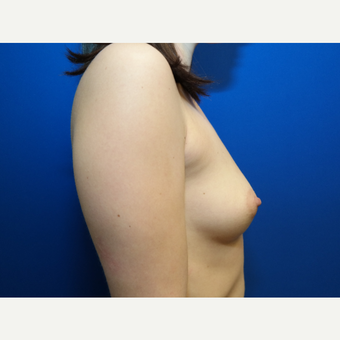 25-34 year old woman treated with Breast Augmentation before 3099031