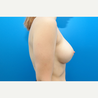 25-34 year old woman treated with Breast Augmentation after 3099031