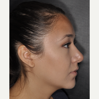 18-24 year old woman treated with Septoplasty 1 year post-op after 3708699