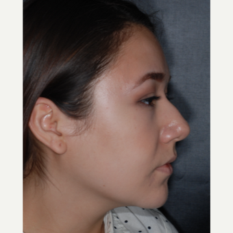 18-24 year old woman treated with Septoplasty 1 year post-op before 3708699
