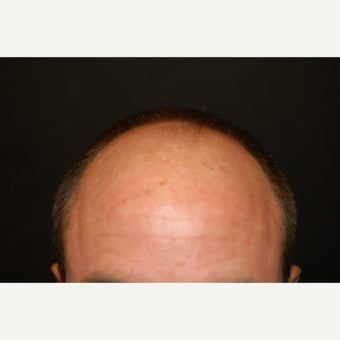45-54 year old man treated with Hair Transplant before 1550323