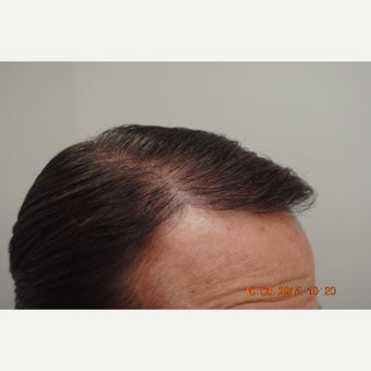 45-54 year old man treated with Hair Transplant 1550323